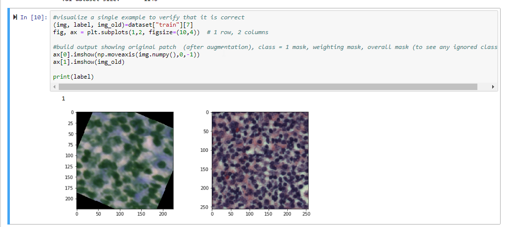 Digital pathology classification using Pytorch + Densenet